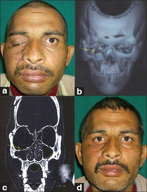 Photographs showing (a) patient with a ten-day-old injury, showing ptosis and enopthalmos on the right side, (b) and (c) radiographs demonstrating complex comminuted fracture of the orbital floor, maxillary wall, and zygoma (d) six-month follow-up photograph showing an improved functional and aesthetic result, with replacement of the orbital floor with calvarial bone graft