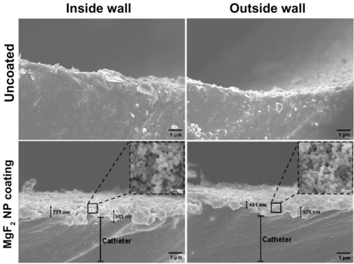 Imaging of sonochemical MgF2 NP catheter coating. Catheters were coated using a sonochemical procedure described in the experimental section. HR SEM images of the lateral sections of the internal and external walls of uncoated and MgF2 NP-coated catheters are presented. Inserts provide an enlarged view of the coating showing the typical spherical MgF2 NP structure.Note: Black arrows indicate the thickness of the MgF2 NP coating.Abbreviations: HR SEM, high resolution scanning electron microscope; NP, nanoparticle.