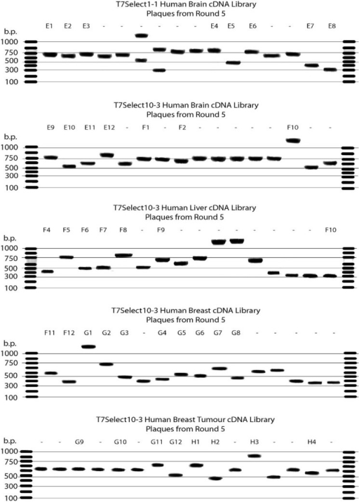Agarose gel electrophoresis of PCR products obtained from various phage-displayed human cDNA libraries after five rounds of selection with palau'amine immobilised on a PS plate via a cleavable disulfide-containing linker. The DNA inserts were amplified using generic T7 primers.
