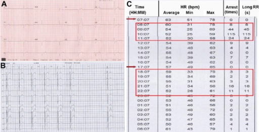 ECG results.Notes: The ECG showed sinus bradycardia, AVB (A) and sinus arrest (B). The symptomatic bradycardia was observed almost 1 hour after the instillation of levobunolol hydrochloride solution (indicated by red arrows) (C). The red boxes refer to the occurrence of bradycardia.Abbreviations: ECG, electrocardiogram; AVB, atrioventricular conduction block; HR, heart rate; RR, R-R interval; min, minimum; max, maximum; bpm, beats per minute; H, hour; M, minute.
