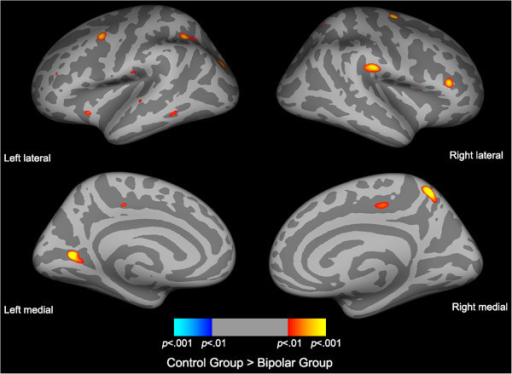 Statistical maps of cortical thinning between bipolar and control subjects. Statistical difference maps highlighting significant cortical thickness reductions between bipolar (n = 73) and control (n = 49) subjects accounting for gender and age identified several ROIs. Significance was set at p < 0.001 (uncorrected).