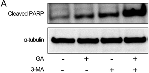 The combination of geldanamycin (GA) and 3-methyladenine (3-MA) potently induces apoptosis in KTHOS cells; (A) PARP assay. Western blot analysis of PARP cleavage in KTHOS cells pre-treated with or without 10 mM 3-MA for 1 h prior to treatment with or without 5 μM GA for 24 h. α-tubulin was used as a loading control. (B) TUNEL assay. The apoptotic rate of cells pre-treated with or without 10 mM 3-MA for 1 h prior to treatment with or without 5 μM GA for 24 h was quantified by flow cytometry using a TUNEL assay. Values are the mean ± standard deviation (SD) of three independent experiments. (C) Annexin V-FITC/PI staining assay. The percentage of cells pre-treated with or without 10 mM 3-MA for 1 h prior to treatment with or without 5 μM GA for 24 h was quantified using Annexin V-FITC/PI staining. Values are the mean ± SD of three independent experiments.