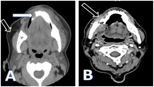 Computed tomography of the face without (A) and with (B) intravenous contrast. (A) Mandibular sclerosis with periosteal reaction of the mandibular body extending to the parasymphyseal region; given history of bisphosphonates therapy most likely osteonecrosis (full arrow). Diffuse subcutaneous edema and submental soft tissue swelling reflecting focal inflammatory changes (hollow arrow). (B) Osteoradionecrosis of the mandible with pathologic fracture of the right horizontal mandibular ramus (arrow).