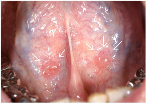 Clinical findings of Case 1. Small, bilaterally symmetric masses on the ventral surface of the tongue (arrows).