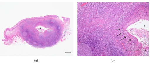 (a) Histopathological findings of Case 1. Germinal center, lymphoid tissue, and a crypt (*) are seen (Hematoxylin-Eosin (HE), scale bar = 250 μm). (b) Lymphoepithelial symbiosis in the crypt is seen (arrows) (HE, scale bar = 250 μm).