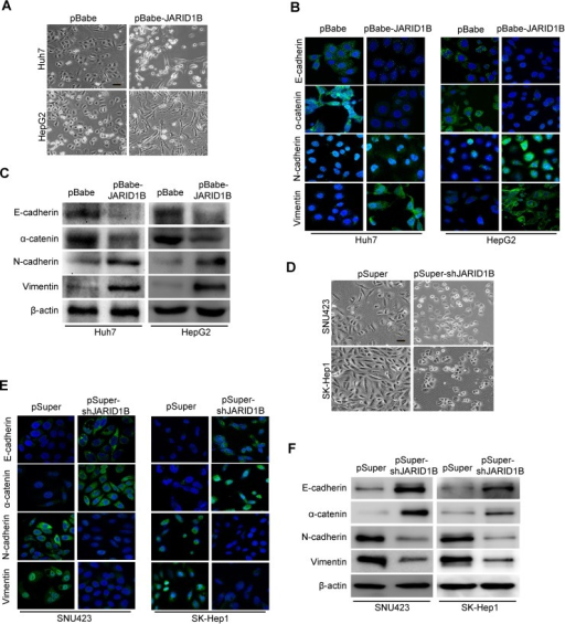 JARID1B regulates the transition between epithelial and mesenchymal phenotypes in HCC cellsA, representative phase-contrast images of Huh-7 and HepG2 cells showed JARID1B overexpression-modulated morphologic changes. B, expression of epithelial and mesenchymal marker was analyzed by immunofluorescence stains in Huh-7 and HepG2 cells. C, expression of epithelial and mesenchymal marker was analyzed by Western blotting in Huh-7 and HepG2 cells. D, representative phase-contrast images of SNU423 and SK-Hep1 cells showed JARID1B knockdown-modulated morphologic changes. E, expression of epithelial and mesenchymal marker was analyzed by immunofluorescence stains in SNU423 and SK-Hep1 cells. F, expression of epithelial and mesenchymal marker was analyzed by Western blotting in SNU423 and SK-Hep1 cells.