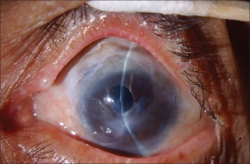 6 years after surgery with peripheral corneal scarring and quite eye