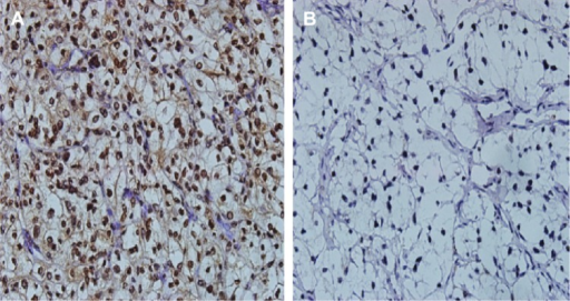 Representative images of immunoreactivity for HO-1 in tumor tissues.Notes: (A) Positive expression; (B) negative expression (magnification, 400×).Abbreviation: HO-1, heme oxygenase-1.