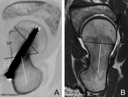 (A) CT axial oblique image of the left hip of a 10-year-old male with cam impingement secondary to slipped capital femoral epiphysis (SCFE) and an excessively posterior tilted growth plate. (B) MRI axial oblique image of the left hip of a 16-year-old male with cam impingement and a less posteriorly tilted growth plate. Image ©San Diego Pediatric Orthopedics. Reproduced with permission.