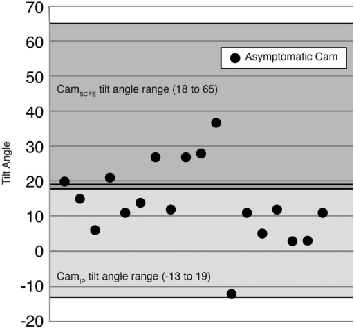 Scatterplot of all 18 asymptomatic cam morphology hips with tilt angles shown. The absolute range of the CamIP (light gray) and CamSCFE (dark gray) cohorts tilt angles are shaded. Most of the hips are within the CamIP range. IP, idiopathic; SCFE, slipped capital femoral epiphysis. Image ©San Diego Pediatric Orthopedics. Reproduced with permission.