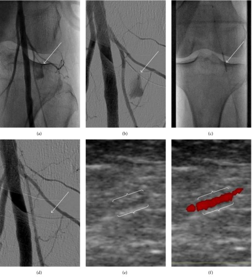 Perforation of a small side branch of the popliteal artery presumably by the 0.035′′ Terumo guide wire (white arrow in (a)). A 0.014′′ wire was subsequently inserted into this side branch (b), and bleeding was stopped after placement of a coronary Direct-Stent stent graft (c and d). Using colour doppler ultrasound the stent graft (white brackets) could be visualized one day after implantation, exhibiting normal blood flow (e and f).