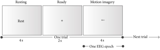 One trial of the motor imagery experiment. The EEG epoch represents the data used for analysis and classification.