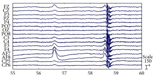 Raw EEG signals with strong EOG and EMG artifacts.