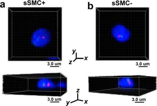 The confocal representation of the positioning of sSMC and chromosome 15 centromeres demonstrated in two geometrical perspectives obtained by confocal microscopy.Red: centromere-specific probe for chromosome 15; green: SMAD6 gene locus (15q22.31). Scale bar: 3.0 μm. (a) Spermatozoa bearing sSMC (sSMC+) with two red and one green FISH signals. (b) Spermatozoa without sSMC (sSMC−) with one red and one green FISH signals.