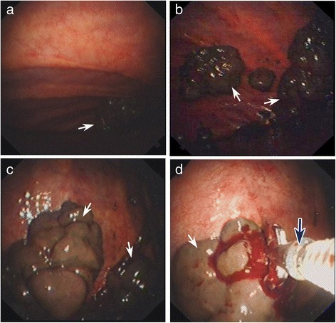 The main observation of pleural biopsy surgery in the right parietal pleura. Multiple violet-black neoplasms can be seen in the parietal pleura by thoracoscopy with video assistance, being different sizes, very brittle, and prone to bleeding, and these lesions are pointed by white arrows (a–c). d The tumor tissues were gained by biopsy forceps. The used forceps is pointed by blue arrow