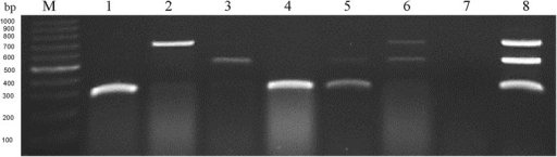 Agarose gel electrophoresis of 6 field samples collected from Haidian District of Beijing City by multiplex RT-PCR. Lanes 1–6, different crucifer leaf tissue samples collected from different fields in Haidian District of Beijing City, Lane 1, Raphanus sativus L.; Lane 2, Brassica oleracea var. acephala f.tricolor; Lane 3, Brassica oleracea L. var. botrytis L.; Lane 4, Brassica rapa pekinensis; Lane 5, Brassica oleracea L. var. Capitata f. rubra DC.; Lane 6, Brassica oleracea L. var. caulorapa DC.; Lane 7, negative control, the healthy crucifer plant sample; Lane 8, positive control, BrYV-A, -B and -C co-infected Nicotiana benthamiana