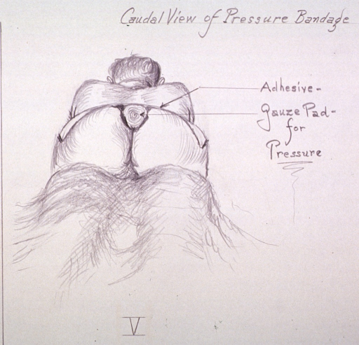 <p>Illustration showing placement of gauze padding for pressure after removal of a cyst.</p>