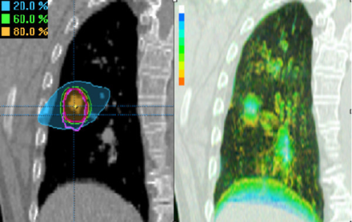 Left panel: Coronal reconstruction of the end-expiration phase bin of patient 13, showing both PTV4DCT1(violet contour) and PTV4DCT2 (pink contour). Colorwash displays of the 80%, 60% and 20% isodoses show the most caudal area of PTV4DCT1 to lie in the 20% isodose area. Right panel: A corresponding color intensity projection in the same patient with the color bar providing time-related positional information (white = 100% presence; blue = 90%; green = 50%; orange = 10%). This indicates that the most caudal PTV region represents a site occupied by the tumor for 10–20% of the respiratory cycle.