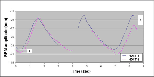 Respiratory waveforms during image acquisition for both 4DCT scans at the level of tumor in patient 13. Images were reconstructed from acquisitions at two consecutive couch positions (table increments of 2 cm) as evidenced by the discontinuous waveforms. The RPM amplitude at the end-expiration tumor position was similar in both 4DCT scans (A), but a larger difference in respiratory amplitude was seen at the end-inspiratory tumor position (B).
