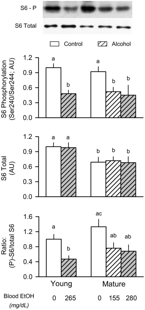 Effect of acute alcohol intoxication on the total amount and phosphorylation of ribosomal protein S6 in skeletal muscle from young and mature rats. Groups are the same as described in Figure 1. Gastrocnemius was collected 2.5 h after administration of alcohol or saline (control). Insert at top: representative Western blots of Ser240/Ser244-phosphorylated (P) S6 and total S6 protein in muscle. Top and middle graphs: densitometric analysis of immunoblots of Ser240/244-phosphorylated S6 and total S6, respectively. Bottom graph: ratio of phosphorylated (P) to total S6 protein in muscle. Values (means ± SEM) are expressed relative to the young saline-treated control group. Sample size was 10, 10, 6, 7, 9, and 9 for the six groups, respectively. Values with different letters are significantly different from each other, P < 0.05. Values which share a common letter are not statistically different.