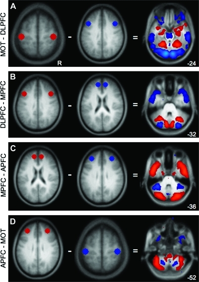 The cerebellum contains at least 4 distinct zones associated with frontal cortex. To illustrate the presence of multiple fronto-cerebellar circuits, maps from distinct frontal seeds are directly compared. Each panel shows the regions being subtracted (left) and the resulting correlation map (right). Maps are at a threshold of z(r) > 0.1. (A) MOT–DLPFC results in preferential correlations with MOT in lobule V in the anterior hemisphere as well as in lobule VIIIB. Preferentially DLPFC-correlated regions include Crus I, Crus II, VIIB, and IX. (B) DLPFC–MPFC further divides the posterior cerebellum: MPFC has greater correlations with Crus I, whereas DLPFC has relatively greater correlations with Crus II (C) MPFC–APFC dissociates in anterior cerebellum betweeen Crus I and lobule VI, respectively. In ventral cerebellum, MPFC preferentially correlates with IX, whereas APFC correlates with VIIIA. (D) APFC–MOT: APFC preferentially correlates with VI, whereas MOT correlates with lobule V in the anterior lobe. APFC continues to correlate with the extent of VI moving ventrally and also appears to correlate with VIIB–VIIIA and Crus II at the ansoparamedian fissure, whereas MOT retains correlations in VIIIB. Numbers refer to the z coordinate plane of the cerebellar slice.