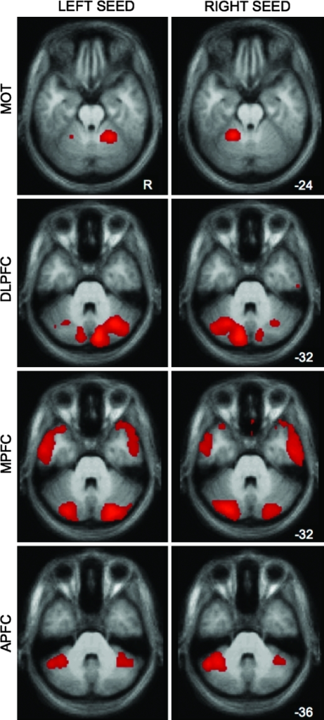 Raw correlation maps show some bilateral cerebellar connectivity from unilateral cortical seeds. Although subtraction of left and right seeds in a given cortical region highlights the contralateral organization of cerebellar connectivity (see Fig. 1), the raw left and right seeds show present, but weaker, ipsilateral connectivity with the cerebellum. This observation is consistent with the smaller percentage of cerebellar projections that cross back to the ipsilateral hemisphere (see text). Maps are at a threshold of z(r) > 0.1.