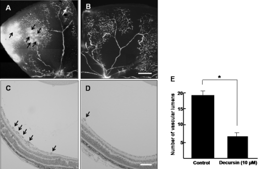 Decursin inhibits retinal neovascularization in oxygen-induced retinopathy. A, B: Retinal vasculature in control mice and decursin-treated mice with oxygen-induced retinopathy (OIR) was evaluated by fluorescence angiography using fluorescein-conjugated dextran. Whole-mount retinal preparation from postnatal day 17 (P17) control mice (A) and mice subjected to OIR and treated with 10 µM decursin (B) was performed after 1 h of perfusion with fluorescein-conjugated dextran. Arrows indicate neovascular tufts of intravitreous neovascularization. Figures were selected as representative data from three independent experiments with similar results. Scale bars equal 50 µm. Hematoxylin-stained cross-sections were prepared from P17 control mice (C) and mice subjected to OIR and treated with 10 μM of decursin (D). Arrows indicate the vascular lumens of new vessels growing into the vitreous. Figures were selected as representative data from three independent experiments with similar results. Scale bars equal 100 µm. E: Each value represents the mean (±SD) of three independent experiments. The asterisk indicates a p<0.05.