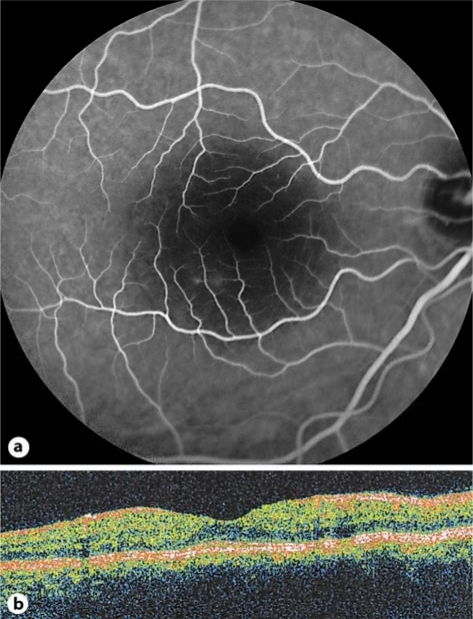 One month after rhinoplasty, the leakage of the RPE in the RE disappeared (a). OCT sections through the macula depict a decrease in retinal thickness (b).