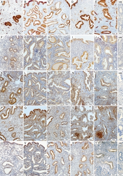 Immunohistochemical localization of AKR1C3 (A–E), CBR1 (F–J), AKR1B1 (K–O), PTGDR (P–T) and PTGER1 (U–Y) in the endometrium across the menstrual cycle; proliferative endometrium (A, F, K, P, U), early-secretory endometrium (B, G, L, Q, V), mid-secretory endometrium (C, H, M, R, W), late secretory endometrium (D, I, N, S, X) and menstrual endometrium (E, J, O, T, Y). Negative controls (−ve). For abbreviations see Table I.