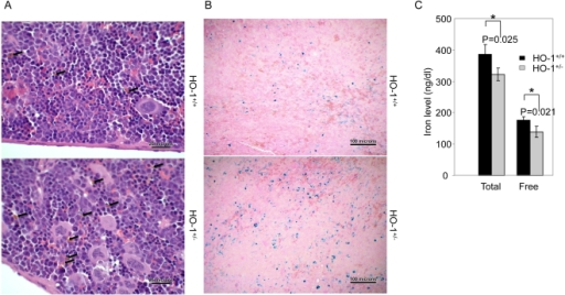 HO-1 participates in optimal iron re-utilization.(A) H&E staining of the spleen sections from hmox+/+ or hmox+/− cell recipients at day 14 post-transplantation is shown. The arrows indicate hemosiderin-laden macrophages. The transplantation of HO-1-deficient BM cells leads to an increase of hemosiderin. The magnification is 400×. The photograph shown is a representative of three experiments. (B) Prussian blue iron staining of the spleen sections from hmox+/+ or hmox+/− cell recipients at day 14 post-transplantation is shown. The transplantation of HO-1-deficient BM cells leads to an increase of Prussian blue-positive cells. The magnification is 100×. The photograph shown is a representative experiment out of the three that were performed. (C) The total and free iron levels in the splenic homogenates from hmox+/+ or hmox+/− cell recipients at day 14 post-transplantation are shown. The transplantation of HO-1-deficient BM cells leads to a decrease of soluble iron. The mean ± SEM is shown for six mice per genotype; *P≤0.05.