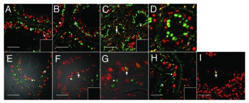 Figure 1. Evidence for Sertoli cell proliferation in men. Confocal immunofluorescence of proliferation markers in testis tissue from normal (A and E) and gonadotropin suppressed men [2 wk, B; 12 wk, C and D (enlarged portion of C) and F and G (enlarged portion of panel F)], in testis with carcinoma in situ (H) and in a tubule adjacent to a seminoma (I). Sections were probed with a combination of either GATA4 (green, in the nuclei of Sertoli cells) within the seminiferous epithelium (asterisks), and PCNA antibodies (red, staining cells with proliferation capacity - triangles) (A–D, H–I), or GATA4 (red) and Ki67 (green, staining proliferating cells) (E–G). Colocalization of GATA4 and PCNA or GATA4 and Ki67 in Sertoli cell nuclei (indicating a proliferative state, arrows) is shown by a yellow color. Figure 1E–G includes a transmitted light channel to illustrate histological detail. Inserts are negative controls. (Bar = 50 µm).