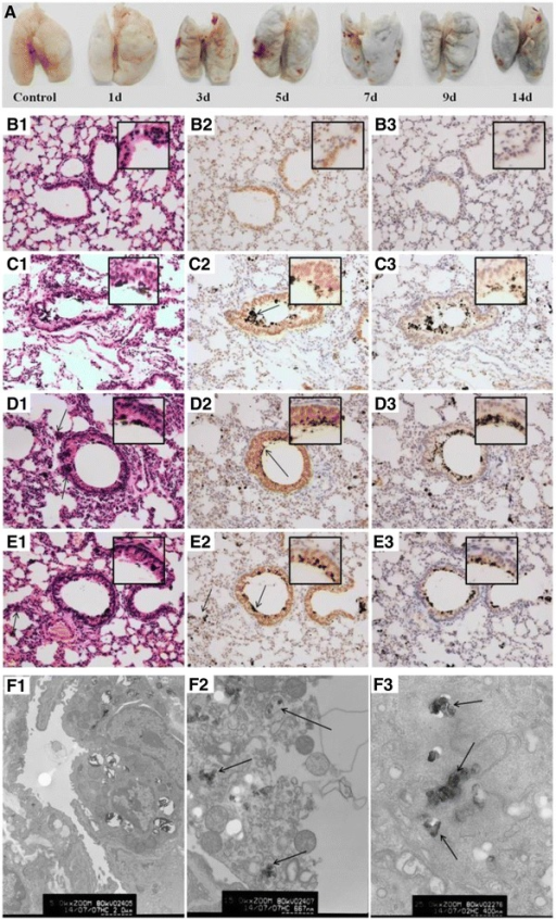 Images of the lung tissue in mice and the IL-8 and IL-6 expression in the lung tissue of mice by immunohistochemical staining. A: Images of the lung tissue in mice after CB inhalation for 14 d. The mice were deeply anesthetized with chloral hydrate and perfused by injection from the left ventricle with 20 mL of 37°C saline solution and then the lung tissues were separated. B1-E1: Histopathology of the lung tissue in mice after exposure to CB particles for different time by HE staining (200×). The arrows in C2, D2, and E2 indicate the CB particles in pulmonary alveoli or bronchioli. The arrows in D1 and E1 indicated inflammatory cells. B2-E2: The IL-8 expression in lung cells after CB exposure for different time points by immunohistochemical staining (200×). The IL-8 positive cells displayed brownish yellow granules. In lung cells, IL-8 was located mainly in the cytoplasm and karyon. B3-E3: The IL-6 expression in lung tissue after CB exposure for different time points by immunohistochemical staining (200×). In lung cells, IL-6 was a granular brown substance located mainly in the cytoplasm and karyon. B1-B3: Control group; C1-C3: 7 d CB exposure group; D1-D3: 14 d CB exposure group; and E1-E3: recovery for 14 d after 14 d CB exposure. Inset: a higher magnification of the lung tissue (400×). F: TEM images of lung cells in mice after CB inhalation for 14 d. F1: Alveolar type II epithelial cells in control (5000×); F2: The disintegration of the macrophages in the lung of mice after CB exposure for 14 d (15000×) (Staining by uranyl acetate and lead citrate); and F3: The CB particles in a lung macrophage (25000×) (No uranyl acetate and lead citrate staining). The arrows indicate the CB particles in a lung macrophage.
