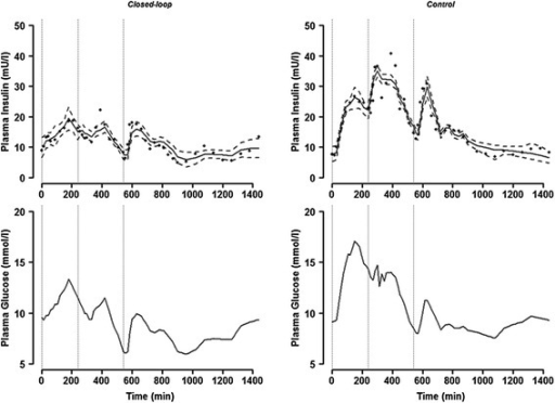 Sample model fit obtained with subject 7. The model fit (with Model 5) to endogenous plasma insulin concentration (upper panel) with plasma glucose excursion (lower panel) during closed-loop (left panel) and control period (right panel); solid line represents model prediction, dashed line 95% intervals, the dotted vertical lines indicate meal time and full circles dots represent measurements).