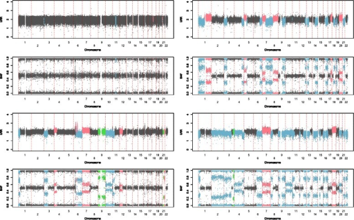 LRR values and BAF values all along the 22 autosomes for four samples with different proportions of tumoral cells: less than 20% (top left panel), 30% (top right panel), 40% (bottom left panel) and 60% (bottom right panel). Copy neutral, copy gain, copy loss and CNLOH are in gray, pink, blue and green, respectively.