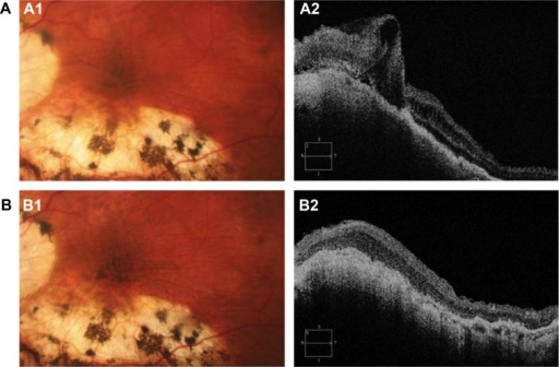 (A) Preoperative hypotony maculopathy shown by posterior pole biomicroscopy (A1) and by optical coherence tomography (A2) in case 1. (B) Biomicroscopy (B1) and optical coherence tomography obtained one year after vitreoretinal surgery (B2) in case 1. Note the increase of hyperpigmentation (B1) despite resolution of the retinal folds, but not the choroidal folds (B2) in case 1.
