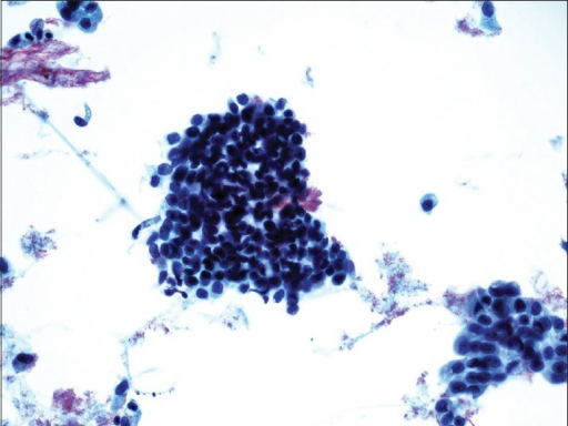 Benign urothelial cells from the upper tract show tight pseudopapillary clusters, typically due to instrumentation. The urothelial cells have relatively low N/C ratio, no nuclear membrane irregularity, and no nuclear hyperchromasia (ThinPrep®, Pap stain ×20)