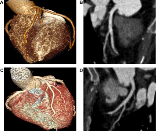 The coronary CT angiography of the patient.Notes: Panels (A and B) show the first diagonal branch of the left coronary artery with approximately 50% stenosis, and the atherosclerotic plaque which was non-calcified prior to the treatment. Panels (C and D) show that the plaque in the first diagonal branch of left coronary artery disappeared after a 10-month Tongguan capsule treatment. The arrow in Figure I A indicates the stenosis. The arrow in Figure I C indicates the stenosis has disappeared.