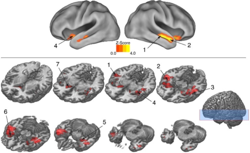 "BOLD suppression (RS) reveals brain substrates for ""reading"" body language. Regions involved in decoding meaning in body language showing were isolated by testing for BOLD suppression when the intended theme of an expressive performance was repeated across trials. To identify regions showing RS, BOLD activity associated with novel themes was contrasted with BOLD activity associated with repeated themes (p < 0.05, cluster corrected in FSL). Significantly greater activity for novel relative to repeated themes was evidence of RS. Given that the intended theme of a performance was the only element that was repeated between trials, regions showing RS revealed brain substrates that were sensitive to the specific meaning infused into a movement sequence by a performer. Number labels correspond to those listed in Table 3, which provides anatomical names and voxel coordinates for key clusters showing significant RS. Blue shaded area indicates vertical extent of axial slices shown."