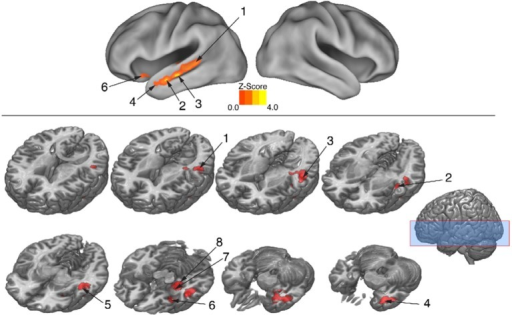 Regions showing greater RS for dance than pantomime. RS effects were compared between movement types. This was implemented as an interaction contrast within our Movement Type × Repetition ANOVA design [(Novel Dance > Repeated Dance) > (Novel Pantomime > Repeated Pantomime)]. Greater RS for dance was lateralized to left hemisphere meaning-sensitive regions. The brain areas shown here have been linked previously to the comprehension of meaning in verbal language, suggesting the possibility they represent shared brain substrates for building meaning from both language and action. Number labels correspond to those listed in Table 4, which provides anatomical names and voxel coordinates for key clusters showing significantly greater RS for dance. Blue shaded area indicates vertical extent of axial slices shown.
