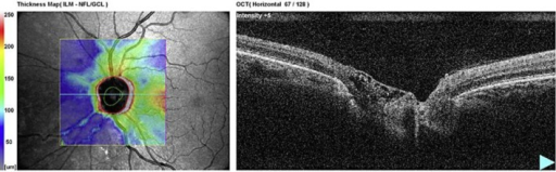 a Radial OCT picture of the abnormal ODP in case 1. b Radial OCT picture of the abnormal left optic disc in case 2.