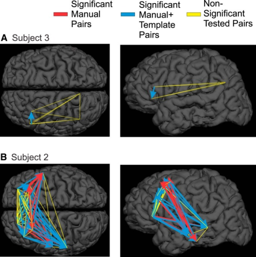 Lack of systematic sequential order in KCs. Sequence pairs that are significant with manually marked KCs are plotted with red arrows, while sequence pairs that are significant only after the addition of KC-like activity are plotted with blue arrows. Sequence pairs tested but not significant are plotted in yellow. A, Subject 3 has electrodes in frontal and parietal cortices, but only shows significant sequences within the frontal lobe, and only after the addition of KC-like activity. B, Subject 2 shows a large number of significant sequence pairs (16) in manually marked KCs, the majority of which lead to the temporal lobe (11). This pattern is strengthened with the addition of KC-like activity (18 of 29 additional significant pairs). A variety of other significant sequences are seen within the frontal lobe.