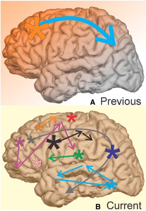 Summary of current KC findings compared with previous views. A, Previous scalp EEG and intracranial studies of the KC and isolated SOs (i.e., KCs) find the KCs with the largest amplitudes in midline prefrontal regions (orange star), as well as strong (blue arrow), one-directional (faded orange background) propagation from anterior to posterior cortical regions. B, Our current findings indicate that when measured locally, KCs are actually smallest in amplitude in anterior prefrontal regions (orange star). KCs may co-occur (uniform yellow background) across variably small or large areas of cortex (stars and arrows). Propagation may occur from anterior to temporal regions (gray arrow), but also occurs in a variety of patterns across the cortex (groups of colored arrows). This variability in KC onset, extent, and spread could be used by the cortex during replay to consolidate memories encoded with correspondingly variable spatiotemporal encoding patterns.