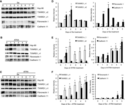 Comparison between TrxR, fibronectin 1 and cadherin 11 protein levels in SH-SY5Y cells upon selenium and/or ATRA treatment(A) Western blot analysis of TXNRD1_v1, TXNRD1_v2, fibronectin 1 and cadherin 11 in SH-SY5Y cell extracts upon indicated days of 0.2 μM Se, (B) 5 μM ATRA or (C) 0.2 μM Se and 5 μM ATRA treatment. (D, E, F) Left panels show quantified relative protein levels of TXNRD1_v1 and TXNRD1_v2 normalized to Hsp-90 levels for 5 days of respective treatment. Right panels show quantified relative protein levels of fibronectin 1 and Cadherin 11 normalized to Hsp-90 levels with the same treatment. Error bars correspond to S.D., *P<0.05, **P<0.01.