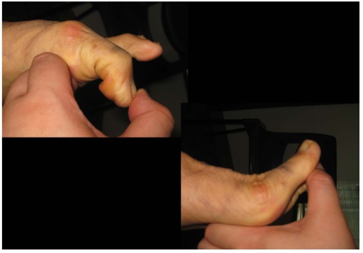 Postoperatively, the passive dorsiflexion and plantar flexion range of motion of the first MTPJ was satisfactory.