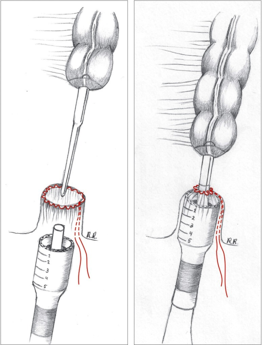 Pursestring is placed on the open anorectal stump, and | Open-i