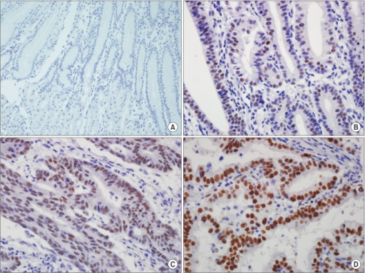 Immunohistochemical (IHC) staining of transducer-like enhancer of split 1 (TLE1) in normal gastric mucosa and gastric cancer (GC). (A) Representative images of TLE1 IHC of normal gastric mucosa (×200) exhibiting a score of 0. (B) Representative images of TLE1 IHC of GCs (×400) exhibiting a score of 1. (C) Representative images of TLE1 IHC of GCs (×400) exhibiting a score of 2. (D) Representative images of TLE1 IHC of GCs (×400) exhibiting a score of 3.