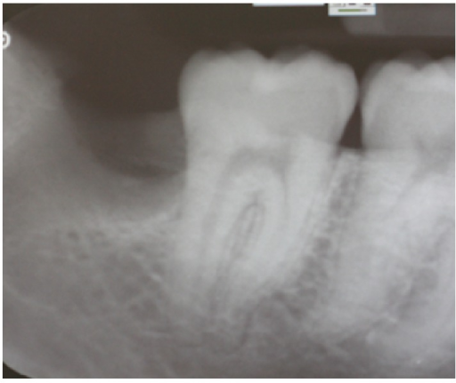 Preoperative periapical X-ray of the lower right second molar.