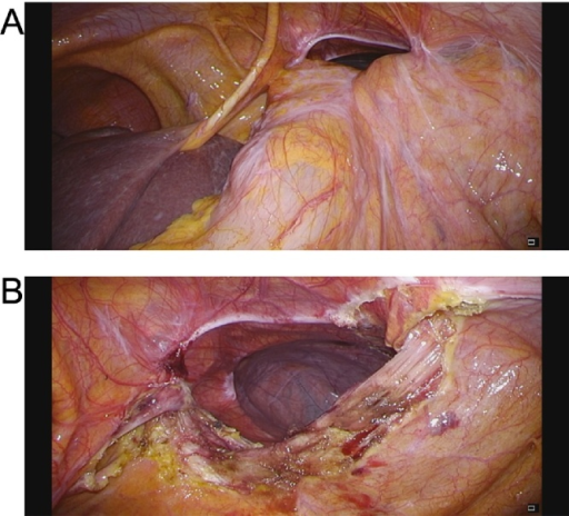 (A) Laparoscopic view showing the transverse colon herniating through the defect on the left side of the falciform ligament. (B) The hernia content reduced into the abdominal cavity.