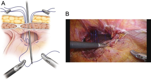 (A) The defect closed by the extra-abdominal suturing technique, suturing the posterior rim of the hernia to the full thickness of the anterior abdominal wall using Endo Close®. (B) Placement of all 5 sutures.