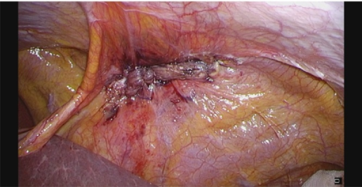 Laparoscopic view showing closure of the hernial orifice.
